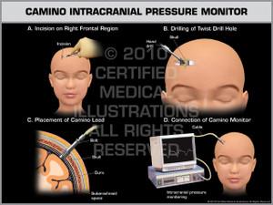 Exhibit of Camino Intracranial Pressure Monitor Child.