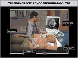 Exhibit of Transthoracic Echocardiography- TTE Male.