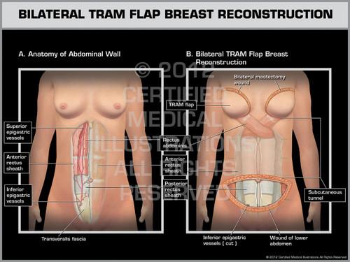 Exhibit of Bilateral Tram Flap Breast Reconstruction.