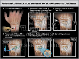 Exhibit of Open Reconstruction Surgery of Scapholunate Ligament.