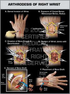 Exhibit of Arthrodesis of Right Wrist.