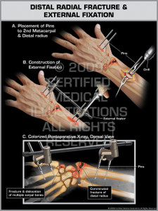Exhibit of Distal Radial Fracture & External Fixation 1.