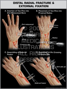Exhibit of Distal Radial Fracture & External Fixation.