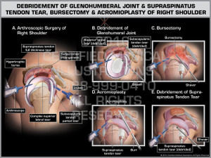 Exhibit of Debridement of Glenohumeral Joint & Supraspinatus Tendon Tear, Bursectomy & Acromioplasty of Right Shoulder.