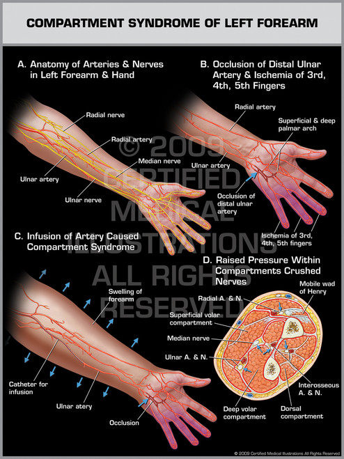 Compartment Syndrome of Left Forearm 1