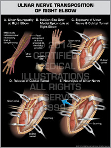 Ulnar Nerve Transposition of Right Elbow