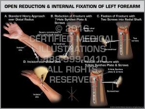 Exhibit of Open Reduction & Internal Fixation of Left Forearm
