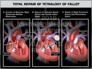 Exhibit of Total Repair of Tetralogy of Fallot