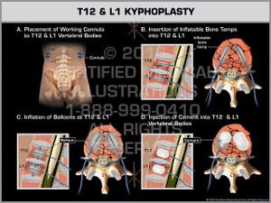 Exhibit of T12 & L1 Kyphoplasty