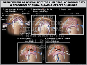 Exhibit of Debridement of Partial Rotator Cuff Tear, Acromioplasty & Resection of Distal Clavicle of Left Shoulder - Print Quality Instant Download