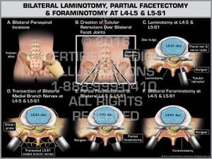 Exhibit of Bilateral Laminotomy, Partial Facetectomy & Foraminotomy at L4-5 & L5-S1