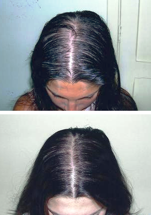 vida hair treatment - before and after 6 months (woman)