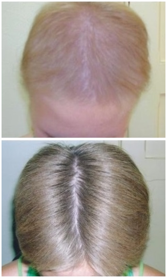vida-hair-treatment-before-and-after-8-months-woman.png