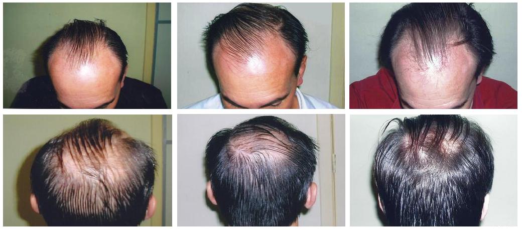 vida hair treatment - photos taken every 4 months