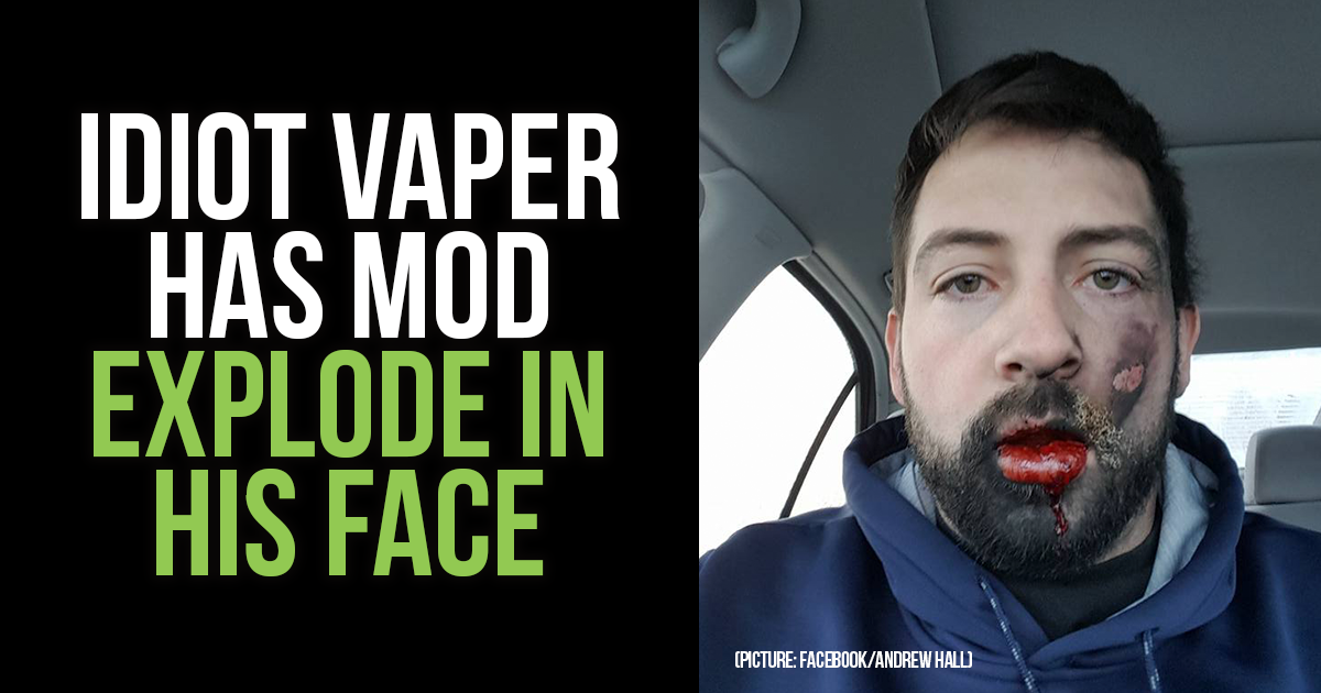 idiot vaper u2019s mod exploded in his face