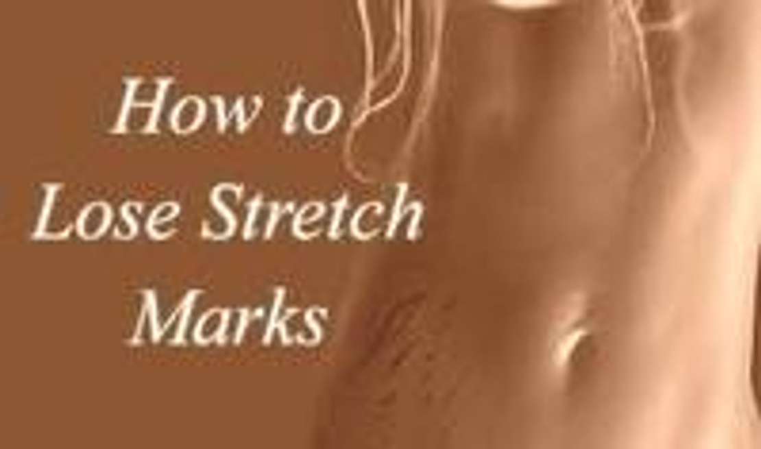 Ask Beautyfeatures.ie: How do I Get Rid of Stretch Marks?