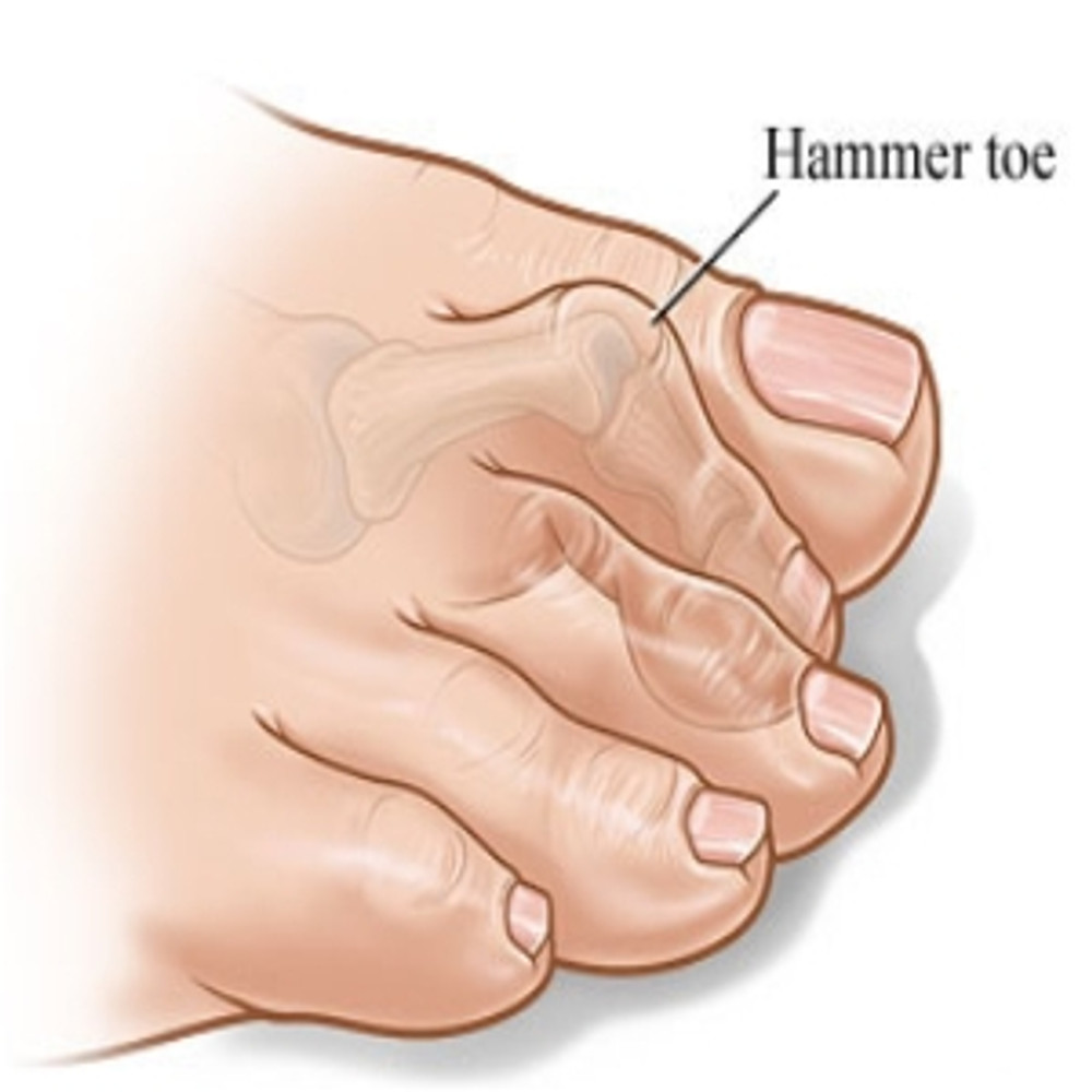 What Are Hammertoes?  How Do You Fix Them?