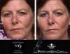 Instant tightening face serum.
