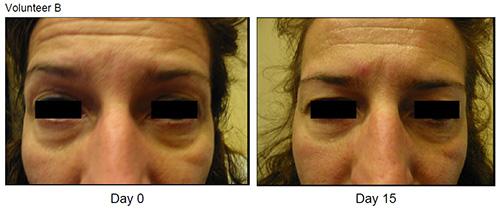 Eyeseryl Before and After Volunteer B