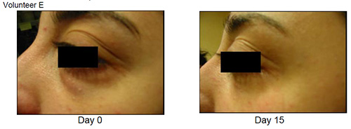 Eyeseryl Before and After Volunteer D