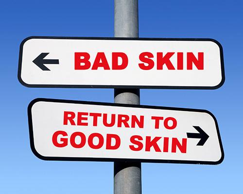 Bad skin Good skin