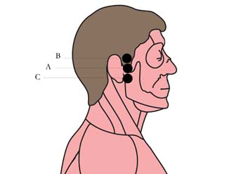 tachyon-product-os-16-ear-pain-cell-points-.jpg