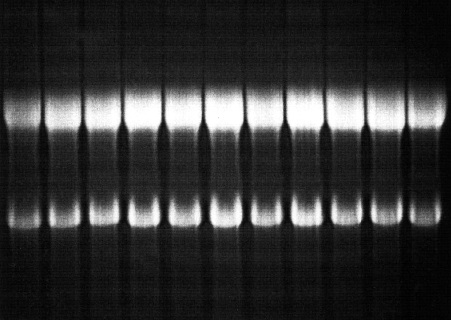RNA purification image
