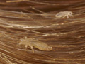 lice-in-hair-enlarged.jpg