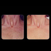 IPL Skin Pigmentation - Décolletage