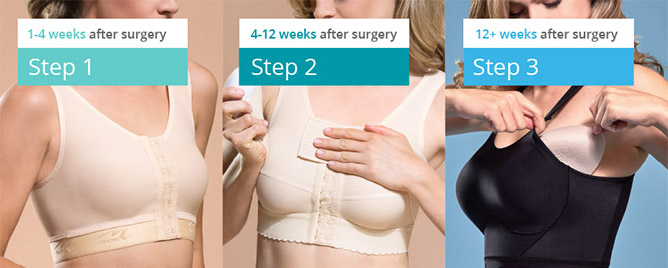 Breast reduction south bend