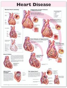 Reference Chart - Heart Disease
