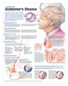 Reference Chart - Understanding Alzheimer's Disease