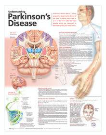 Reference Chart - Understanding Parkinson's Disease