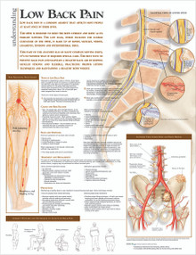 Reference Chart - Understanding Low Back Pain