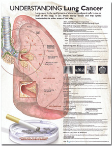 Reference Chart - Understanding Lung Cancer