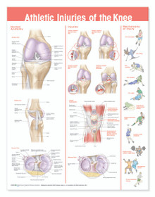 Reference Chart - Athletic Injuries of the Knee