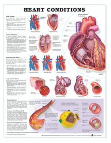 Reference Chart - Heart Conditions