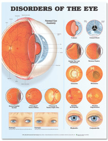 Reference Chart - Disorders of the Eye