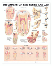 Reference Chart - Disorders of the Teeth and Jaw