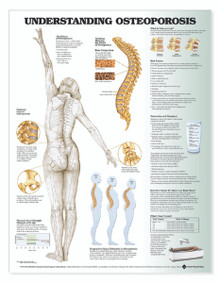 Reference Chart - Understanding Osteoporosis