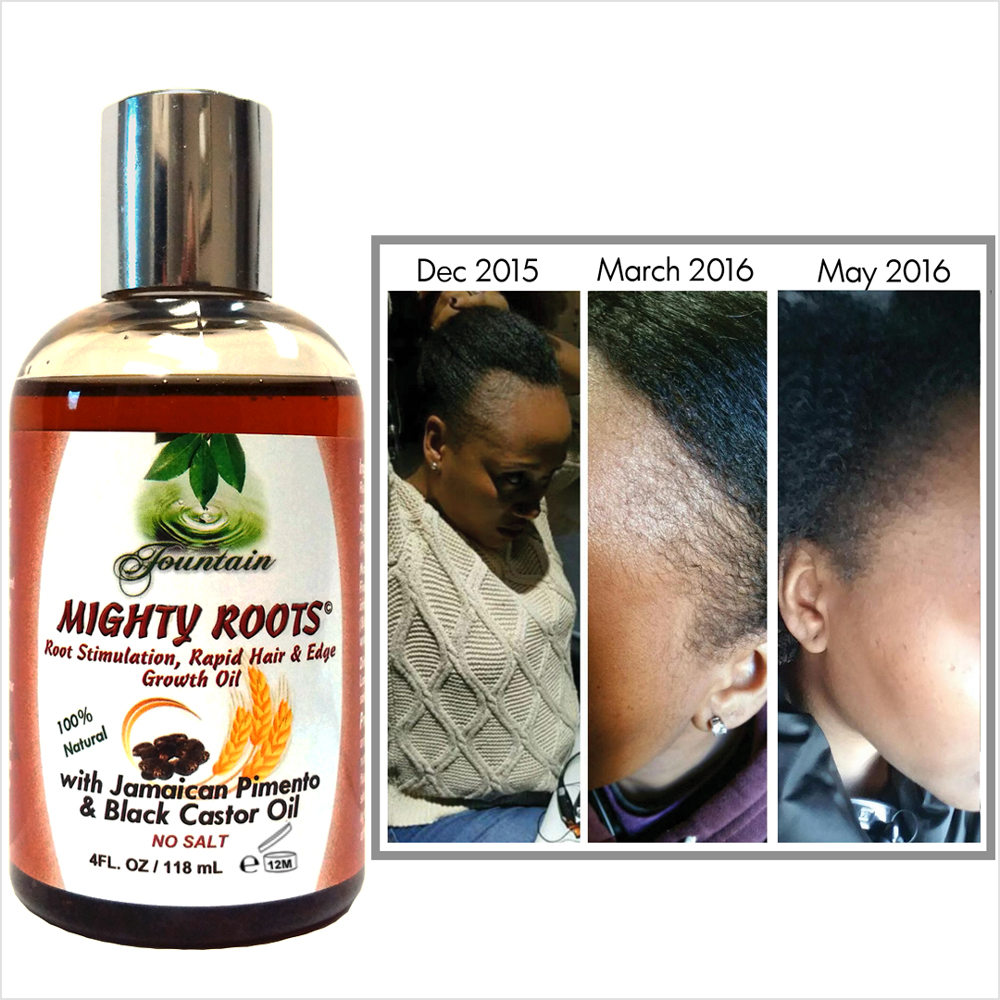 fountain-mighty-roots-with-jamaican-pimento-and-black-castor-oil-4oz-real-people-real-results.jpg
