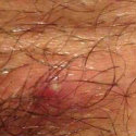Treatment for molluscum under public hair and genitals.