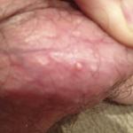 Molluscum contagiosum treatment for the genitals, scrotum and penis.