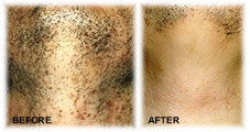 Before and after treatment with Priva Shave post hair removal  solution
