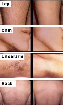 Hair Today Gone Tomorrow The Facts On Laser Hair Removal