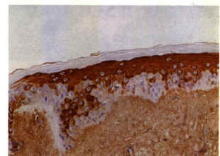 Photomicrograph of a scalp biopsy demonstrating the immunohistochemical localization of DHT (dyed red) in the epidermal layer of the scalp