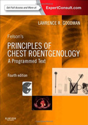 Felson's Principles Of Chest Roentgenology