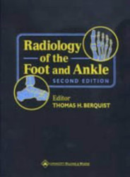 Radiology Of The Foot And Ankle
