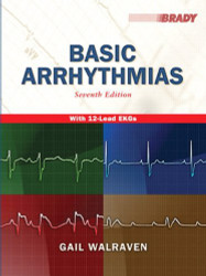 Basic Arrhythmias