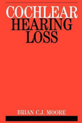 Cochlear Hearing Loss